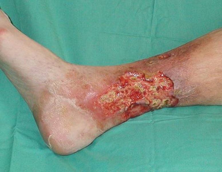 owrzodzenia leczenie, owrzodzenia warszawa, owrzodzenie podudzi leczenie, przewlekłe rany