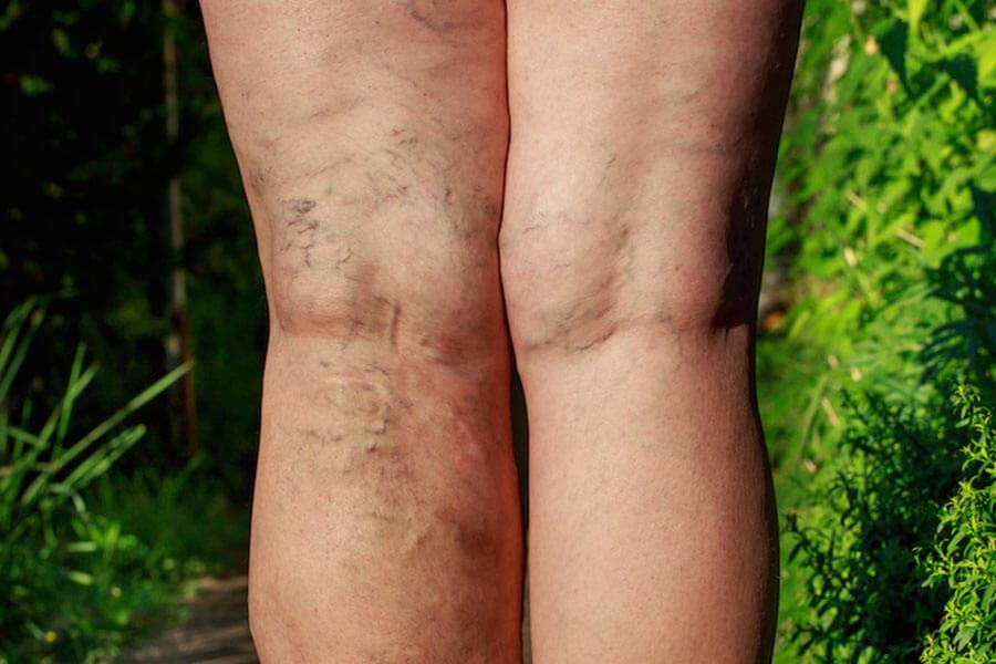 Zabieg skleroterapii żylaków kończyn dolnych - leczenie niewydolności żylnej