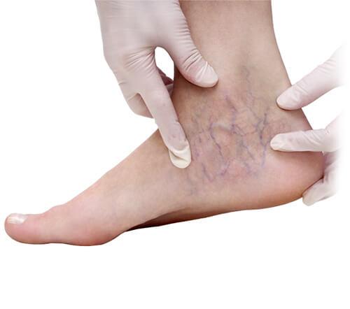 Leczenie z wykorzystaniem skleroterapii - zabieg z zakresu flebologii