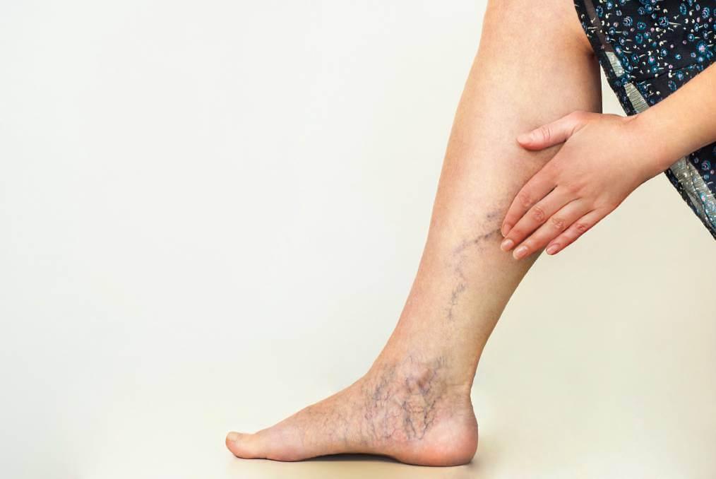 Skleroterapia żył, leczenie choroby układu naczyń żylnych, zmian żylnych, pajączków - wstrzykiwanie do żyły preparatu wymuszającego krzepnięcie krwi poprzez obrzęk naczyń