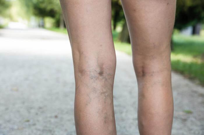 Efekt leczenia żylaków w Rad Med przy pomocy skleroterapii